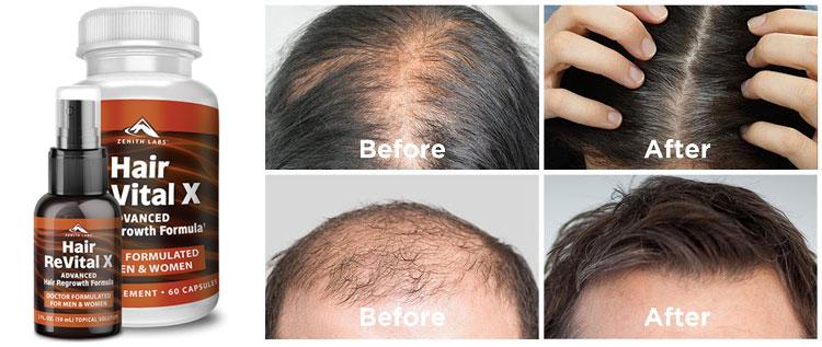 Hair Revital X Reviews