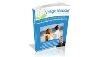 Vitiligo-Miracle