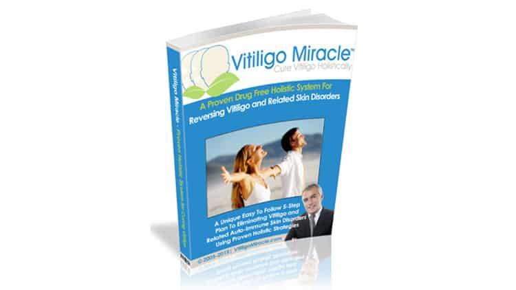 Vitiligo Miracle