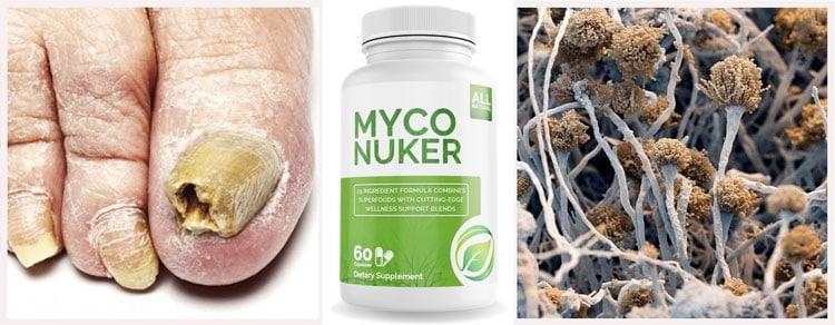 Myco Nuker Review