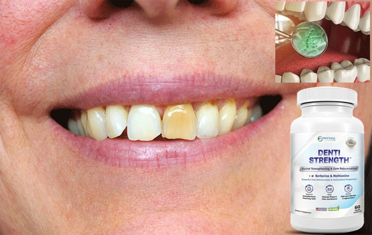 Denti Strength Review