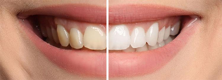 Improve Teeth