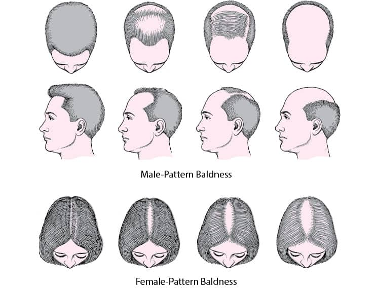 Male-Women-Baldness