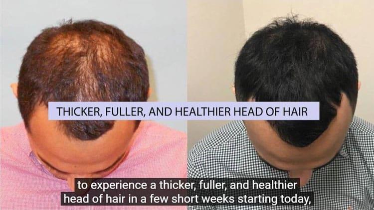 Success-Improve-Hair-Loss