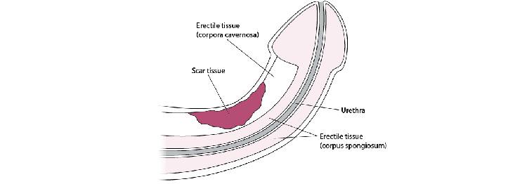 Erectile tissue