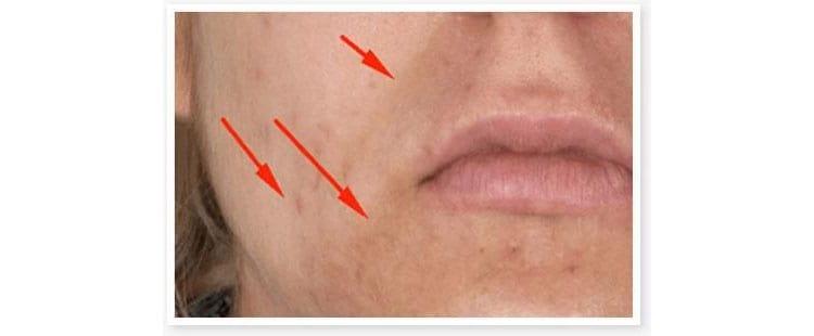 Post-Inflammatory-Hyperpigmentation