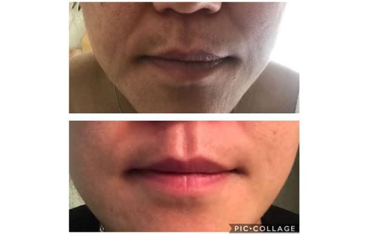 Work on dark skin, light skin, both oily and dry skin