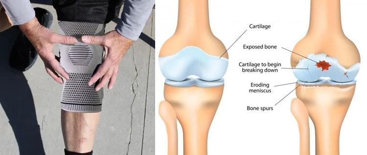 Best Way To Improve Knee Pain
