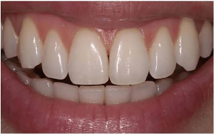 Effective dental health