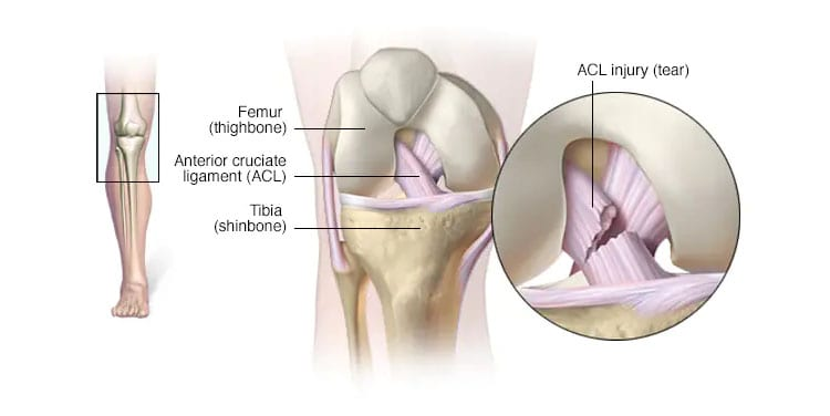 Knee pain - Symptoms and causes