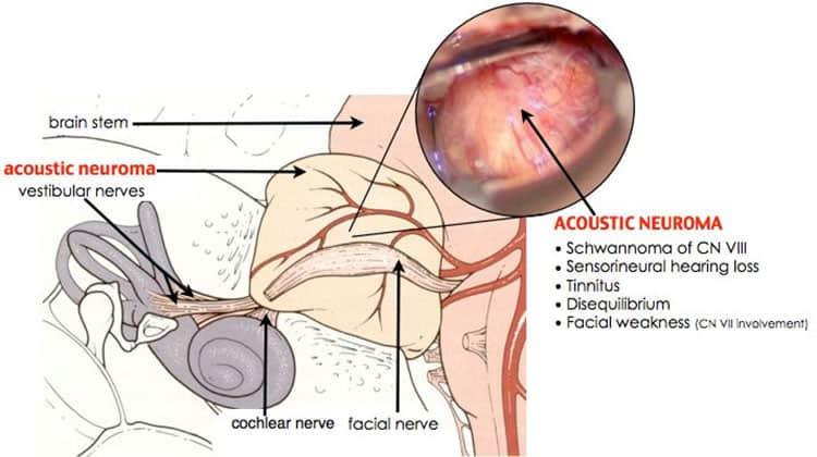 Tinnitus symptoms, Tinnitus relief, Hearing loss