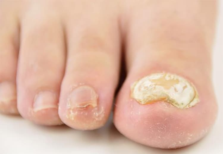How to treat toenails fungus