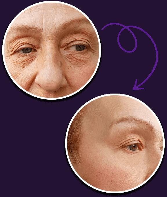 Get rid of dark spots and uneven skin tones